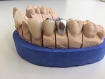 Zahnarztpraxis Mario Fleischer und Partner - Behandlung